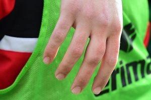 Die Hand von Keeper Grubba. Deutlich zu sehen: der lädierte Mittelfinger. Foto: KBS-Picture